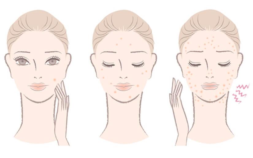 8 דרכים למניעת פצעי בגרות